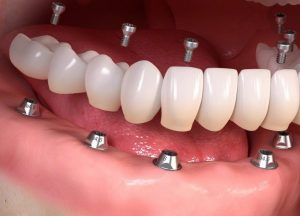 impianto dentale viaggideldente