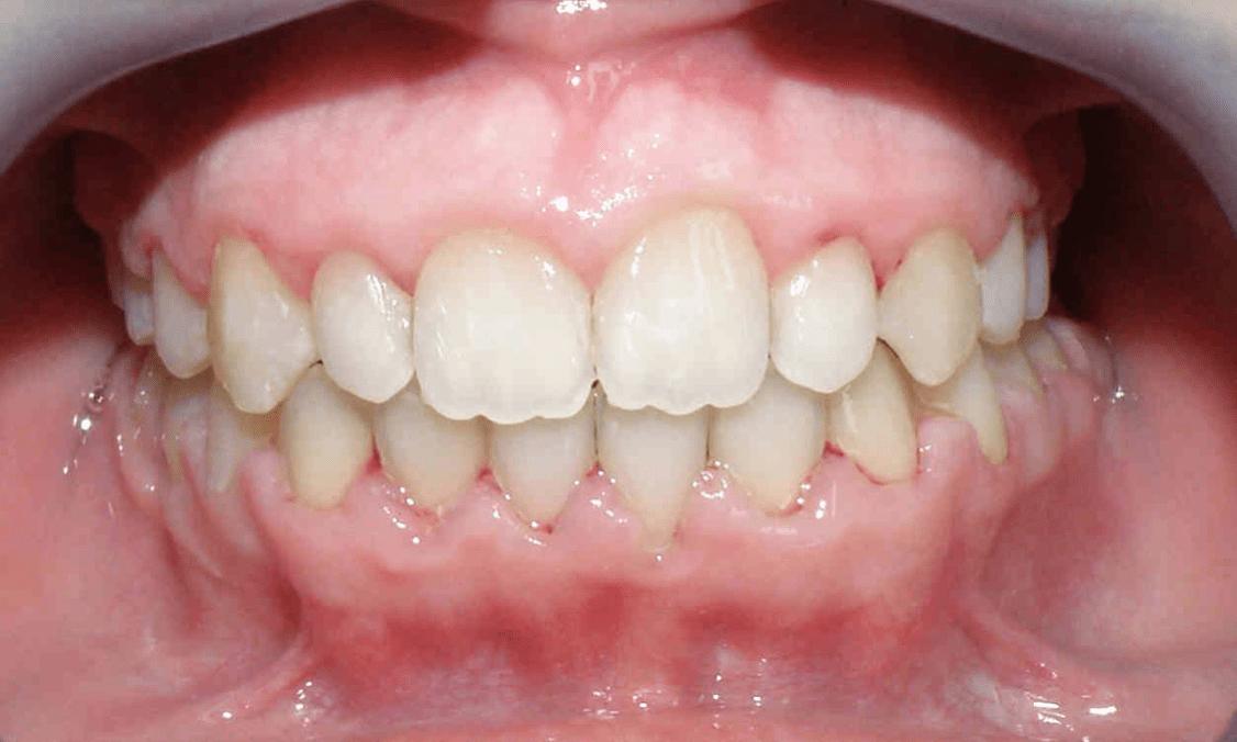 apparecchio ortodontico fisso e mobile viaggideldente migliori dentisti croazia prima della terapia