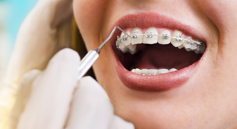 ortodonzia viaggi del dente
