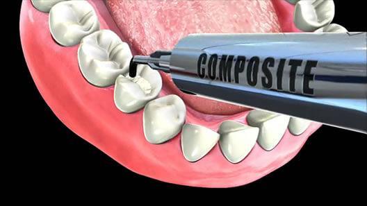 ricostruzione dentale croazia