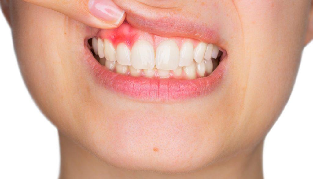 parodontite viaggi del dente